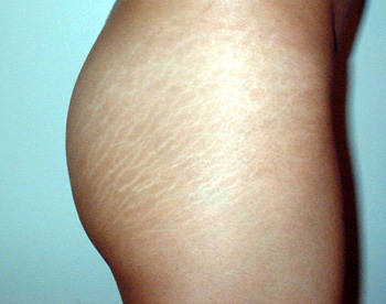 white stretch marks picture