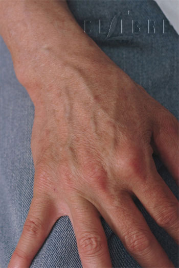 hand rejuvenation after photo