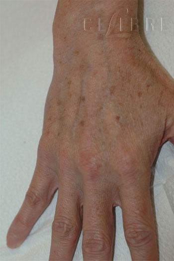 hand rejuvenation before photo