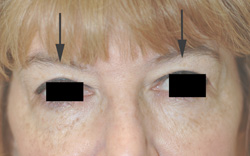 Botox Brow Lift After Pictures