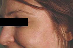 Crows Feet After Botox Photo by Celibre Medical Corporation