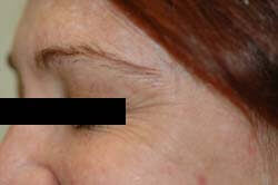 Crows Feet Before Botox Photo by Celibre Medical Corporation