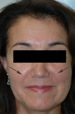 Los Angeles Restylane Injections before and After Pictures