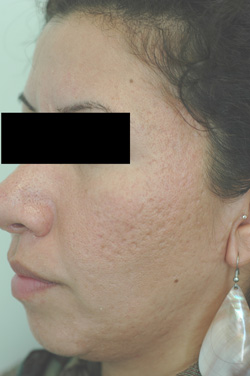 los angeles laser hair removal before pictures