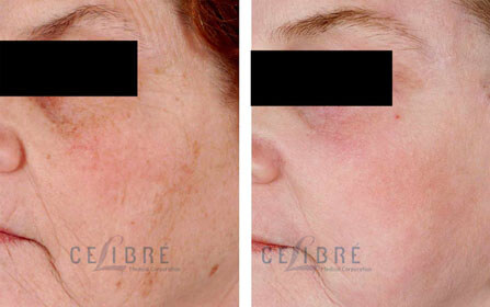 laser resurfacing Before After