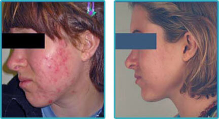 Acne Laser Treatment Before After