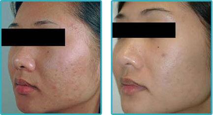 Acne Scar Laser Removal