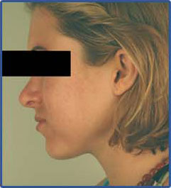 after laser acne treatment photo