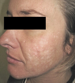ablative laser resurfacing los angeles before and after pictures