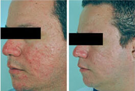Adult Acne Before After Pictures