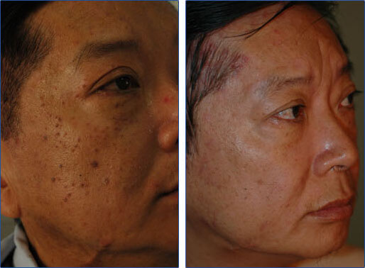 Dermatosis Papulosa Nigra Before and After Photo
