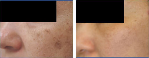 Laser Removal of Age Spots on Asian Skin