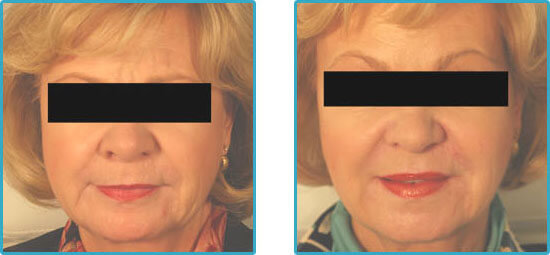 perlane restylane injections