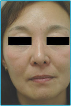 melasma treatments