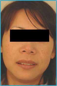laser age spot removal treatments for Asians
