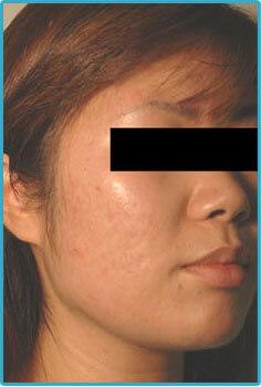 laser acne removal
