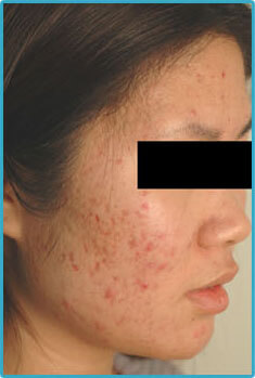 Acne Laser Treaments for Asian Skin