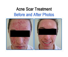 Acne Scar Before and After Photos