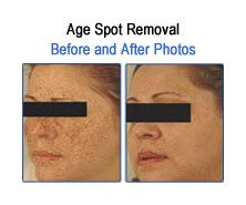 Age Spots Sun Spots Before and After Photos