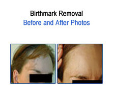 Birth Mark Before and After Photos