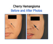 Cherry Hemangioma Before and After Photos
