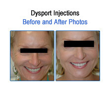 Dysport Before and After Photos