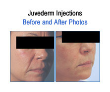 Juvederm Before and After Photos
