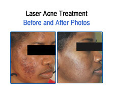Acne Before and After Photos