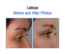 Latisse Before and After Photos
