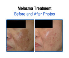 Melasma Before and After Photos