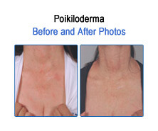 Poikiloderma Before and After Photos