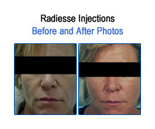 Radiesse Before and After Photos