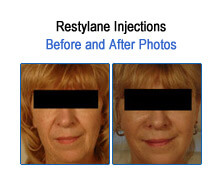 Restylane Before and After Photos