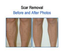 Scar Removal Before and After Photos