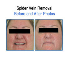 Spider Vein Removal Before and After Photos