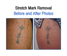 Stretch Mark Before and After Photos