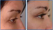 Latisse Eye Lash Enhancement