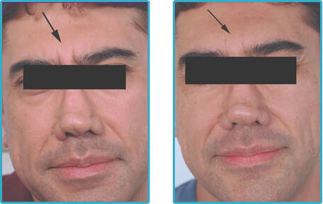 before after botox injections for between the eyes