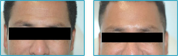 botox forehead lines before and after pictures