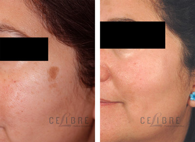 Brown Spots Removal Before After Photo