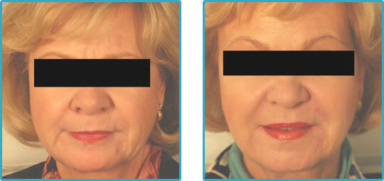 restylane injections chin lines before and after photos