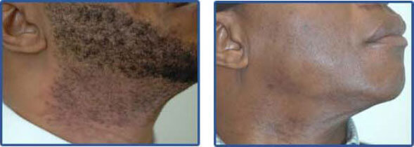 laser hair removal for dark skin Before After Photo