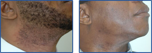 facial hair laser removal before after pictures