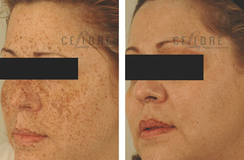 freckle removal before after picture