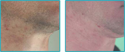 Laser Hair Removal Before After Pictures