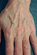 laser hand rejuvenation before and After Pictures