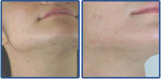 Laser hair removal hawthorn / Laser hair removal hawthorn