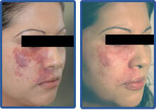 port wine stains removed with lasers