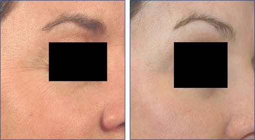 Laser Resurfacing for Wrinkles