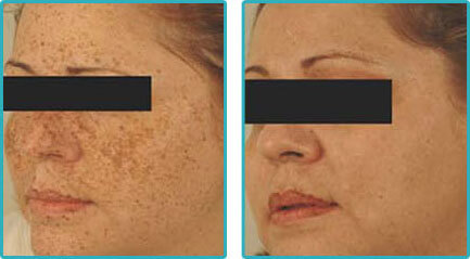 Laser Resurfacing Before After Pictures